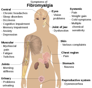 632px-Symptoms_of_fibromyalgia.svg